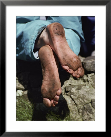 Close Up Of A Pilgrims Feet After Walking The Stations Of The Cross On Lough Derg by Sam Abell Pricing Limited Edition Print image